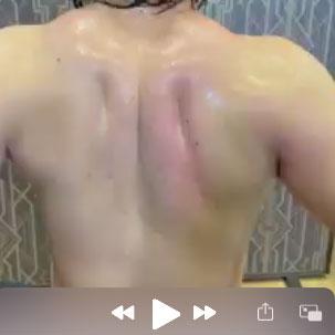 ラクリスで肩甲骨に筋膜トリートメントしている様子